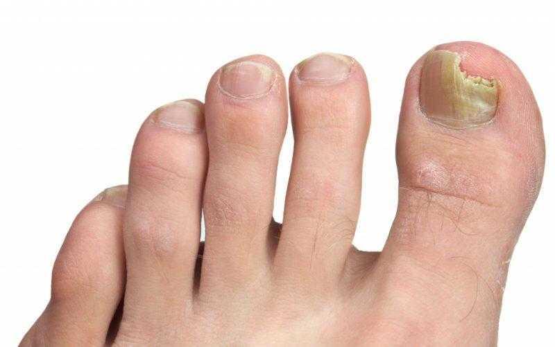 Лечение грибка ногтей народными средствами - самые эффективные методики