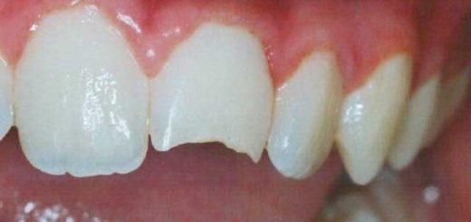 К чему снится, что откололся зуб по сонникам и фактическим значениям