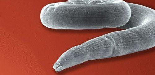 К чему снятся живые глисты у себя?