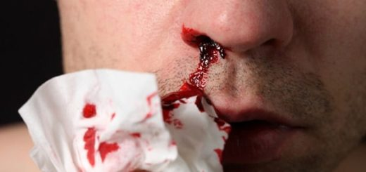 К чему снится кровотечение по сонникам Адаскиной, Зэдкиеля
