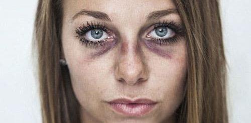 К чему снятся синяки на лице и на теле по основным значениям