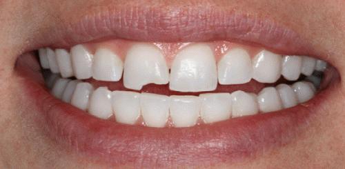К чему снятся зубы, которые выпадают и крошатся?