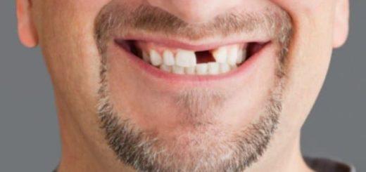 К чему снится выпадение зубов по сонникам Миллера, Лоффа, Цветкова